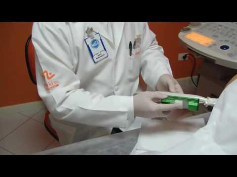 Análise de cheques próstata