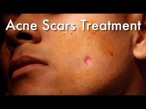 Laser pagtanggal ng freckles