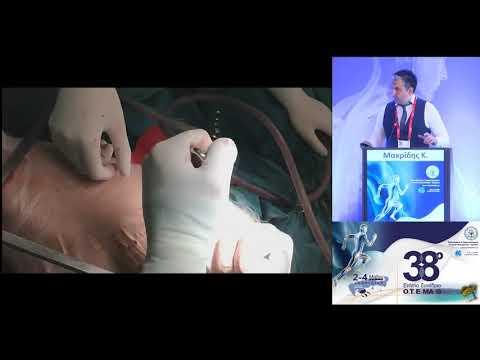 Μακρίδης Κ. - Ολική αρθροπλαστική του ισχίου με την μινι-οπίσθια προσπέλαση του ισχίου: Πλεονεκτήματα και μειονεκτήματα