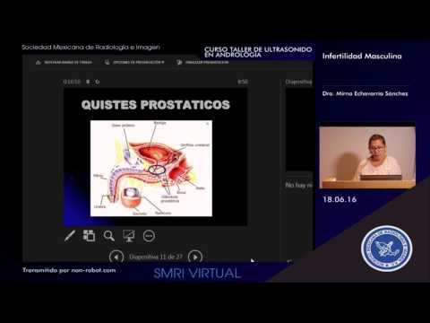 Hogyan lehet megtudni a betegség prosztatitis