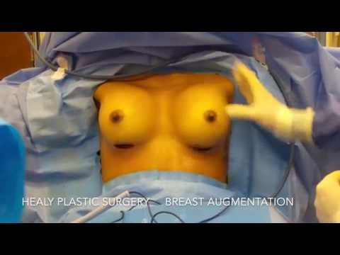 Gdzie zrobić operację plastyczną na penisa