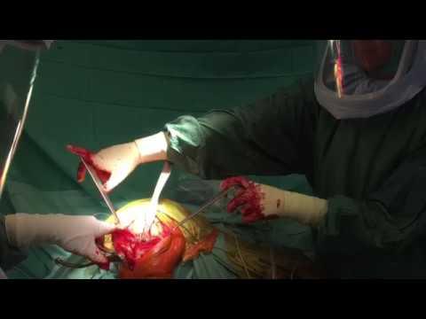 Schmerzen im Rücken der Bauchspeicheldrüse