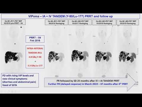 Prostatitis számítógépes tomográfia