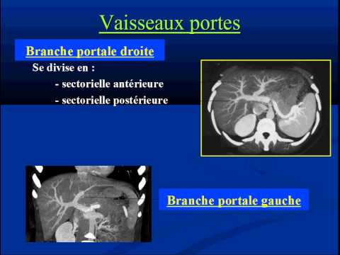 La thrombose des veines du traitement
