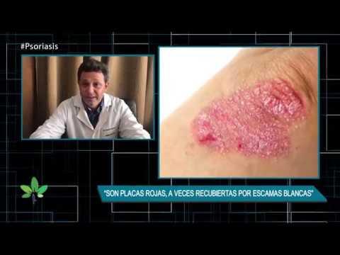 El tratamiento público de la psoriasis al picor