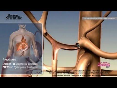 Вирусные гепатиты механизмы передачи