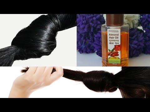 Androgenic alopecia sa mga kababaihan