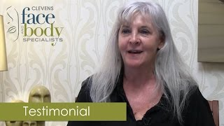 Upper and Lower Eyelid Surgery Patient Testimonial