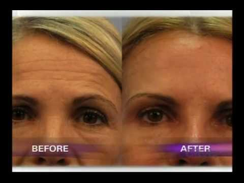 Fractora Skin Treatment in Toronto Med Spa on City Line | SpaMedicaTV    Video Thumbnail