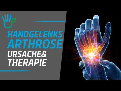 Wie die Kerne auf dem Finger des Beines zu behandeln