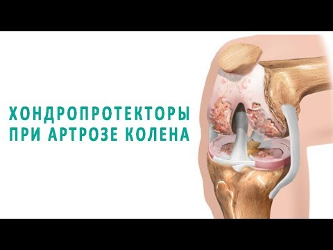 Эффективны ли хондропротекторы при артрозе коленного сустава?