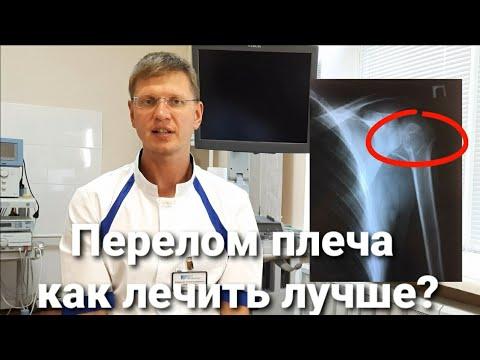 Перелом плеча со смещением  и без смещения: как лечить повязка, гипс  или операция. КодМКБS42. 2
