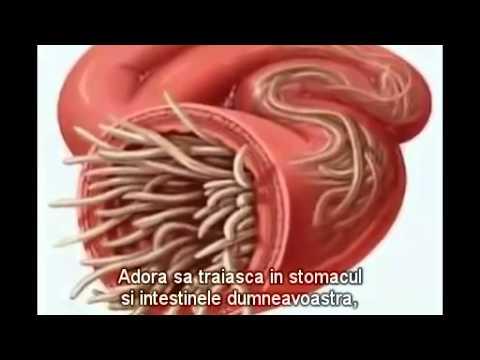Infecția și tratamentul paraziților