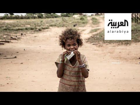 العرب اليوم - شاهد: ملايين طفل سيعانون سوء التغذية الحادة بسبب