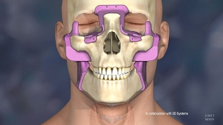 Mayo Clinic's First Face Transplant: The Surgery