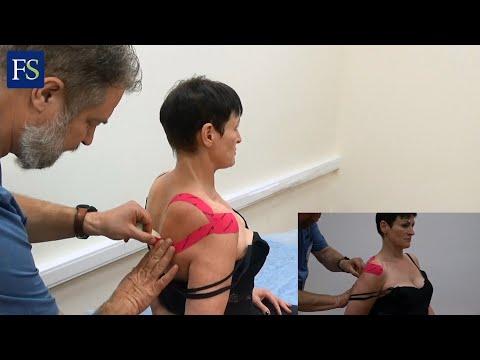 Лечение боли в плечевом суставе. Мануальная терапия и тейпирование.