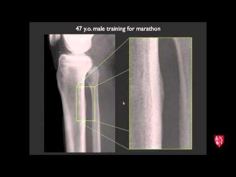 Osseous Stress Injuries - MRI