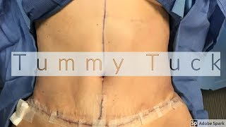 Tummy Tuck and Liposuction to the Back: How a Tummy Tuck and Liposuction is Done