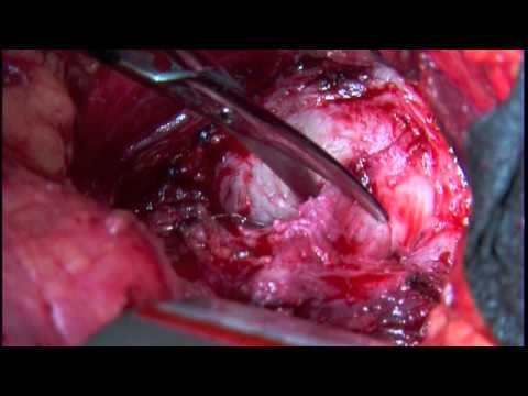 Cavitary removal of the prostate adenoma