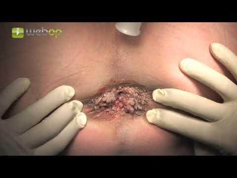 Giardiavax hatékonyság