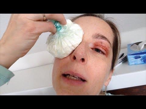 Volatile Gelenkschmerzen Ursachen und Behandlung