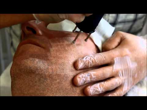 Масло при пигментации кожи