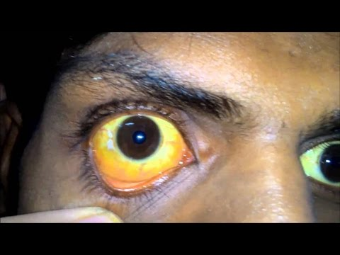 Video Home Remedies for Jaundice | Hepatitis | Liver jaundice