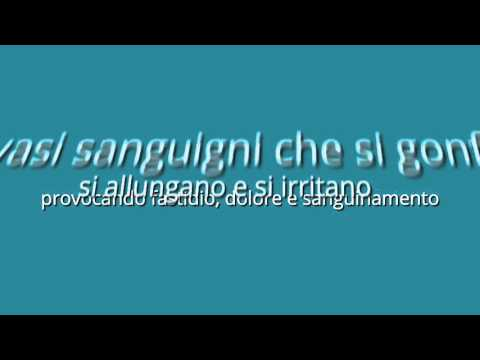 Recisione di unincrinatura anale di una conseguenza