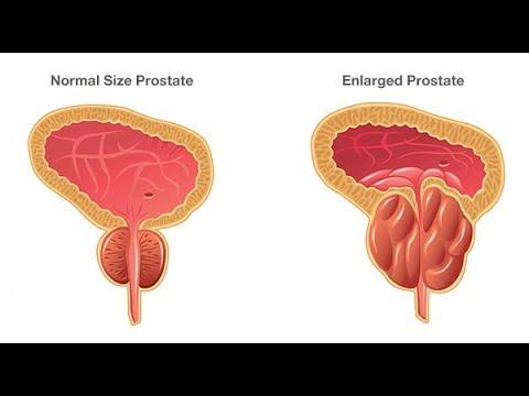 Veut massage de la prostate sexuelle