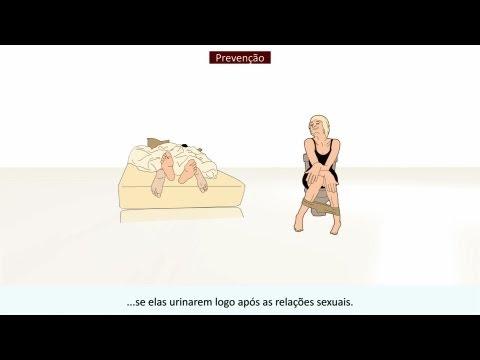 Indicazioni secrezione prostata