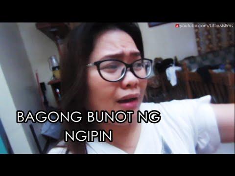 Ang mga kuko ng mga kamay punto ng paggamot
