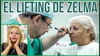 EL LIFTING FACIAL DE ZELMA GALVEZ 😍 DR. ALBERTO CALVO QUIROZ