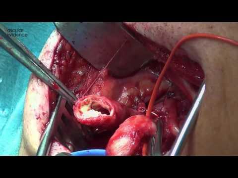 Wie Osteoarthritis des Knies 2. März Grad zu heilen
