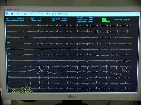 Stupanj 2 hipertenzije i invalidnost