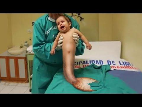 Las operaciones del aumento del pecho en volgograde