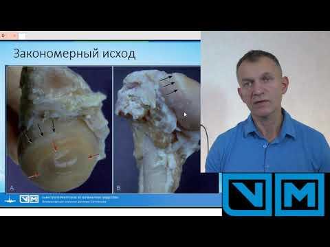 Дисплазия тазобедренного сустава как лечить