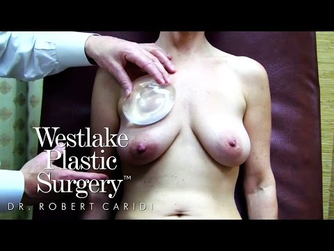 Educational Video: 5 Breast Surgery Options