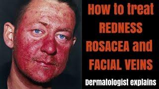 How to treat rosacea, redness & facial veins