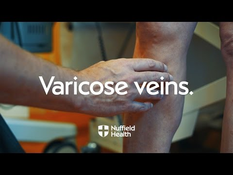 Varicosity hypostases trattamento