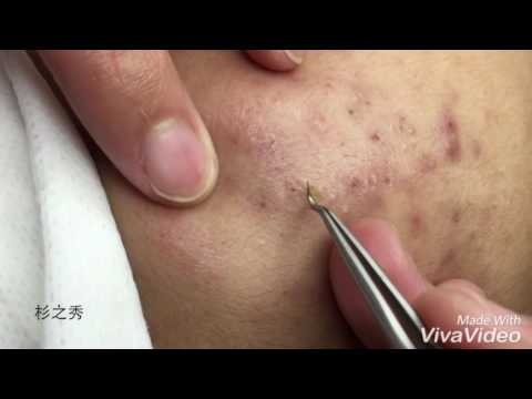 杉之秀深層粉刺處理- YouTube
