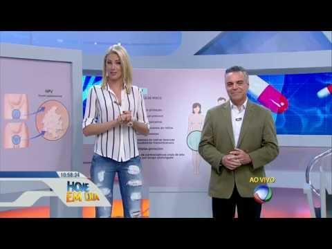 Hpv cancer in neck symptoms