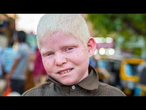 Isa sa mga kilalang tao ay may freckles sa kanyang mukha