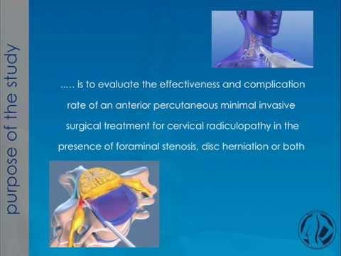 Behandlung von zervikaler Osteoarthritis Wasserstoffperoxids