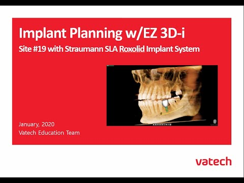 Site #19 with Straumann SLA Roxolid Implant System