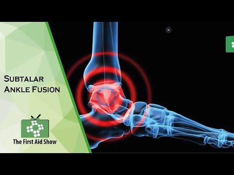 Das Kniegelenk Kollateralbandes Erholung
