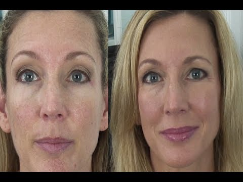 Md Creme Mineral Beauty Balm by mdsolarsciences #5