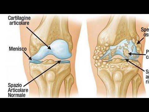 Quali farmaci trattare lartrite del ginocchio