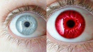 30 Rarest Eye Colors In Humans, 30 Rarest Eye Colors In The World, 30 Types Of Eye Colors In Humans