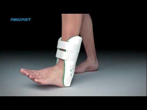 Osteocondrosi del trattamento colonna lombare a casa
