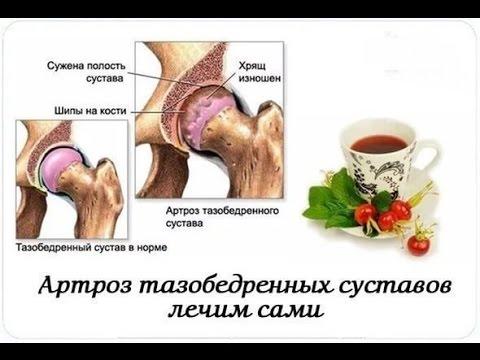 Лечение тазобедренных суставов народными средствами